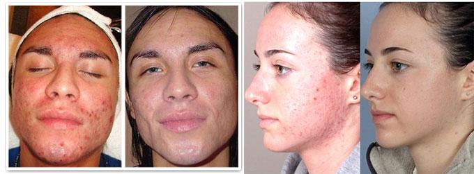 Результаты гидромеханопилинга до и после