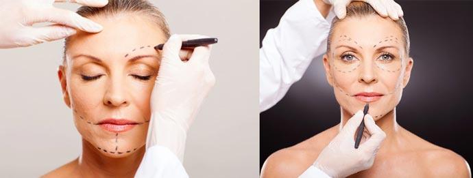 Линии для эндоскопической подтяжки лица