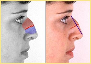 Определение горбинки носа