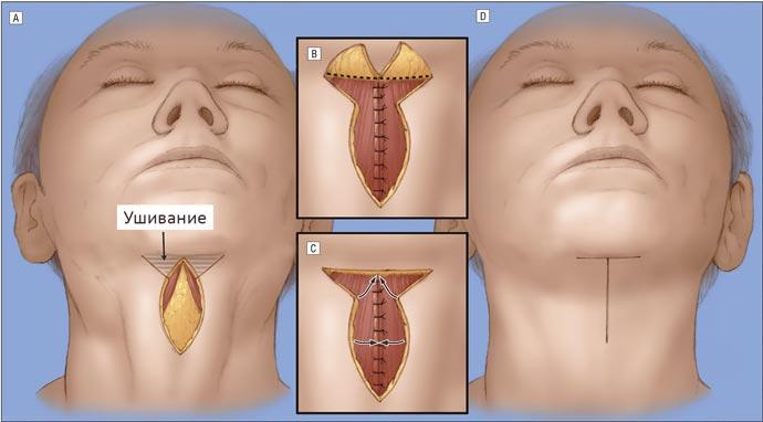 Схема хирургической подтяжки шеи
