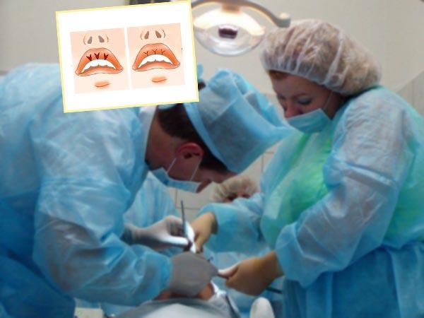 Хирургическая операция губ