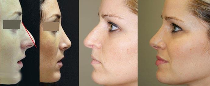 Коррекция дефектов носа, до и после