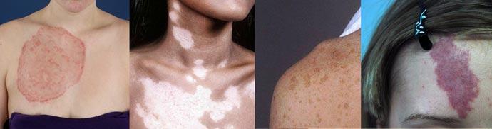 Разновидности пятен на коже