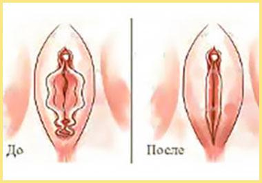 Коррекция половых губ до и после