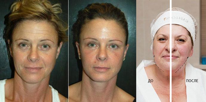 Ультразвуковая подтяжка лица до и после