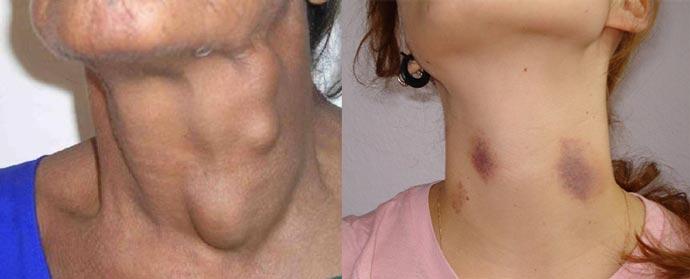 Отеки и синяки после подтяжки шеи