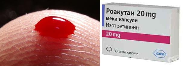 Несвораичваемость крови, препарат Роакутан - изоретироина