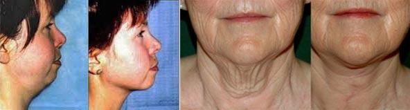 Результаты подтяжки шеи до и после