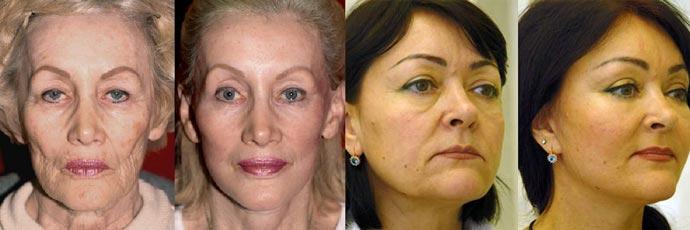 До и после эндоскопической подтяжки лица