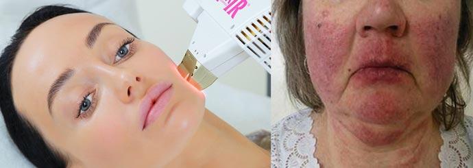Гиперемия кожных покровов после термолифтинга