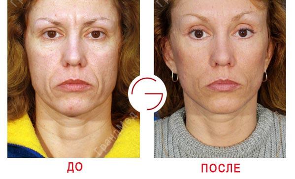 показания эндоскопическа подтяжка лица до и после