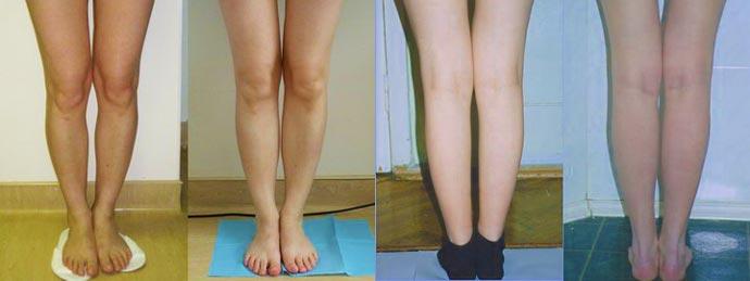 Круропластика ног до и после