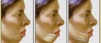 Кореркция подбородка - ментопластика