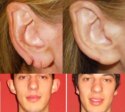 Пластика поврежнённого и отопыриного ушей - до и после