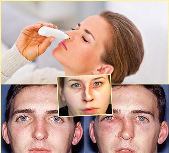 Затруднения дыхания и заложенность носа, кривая перегородка носа, травмы носа