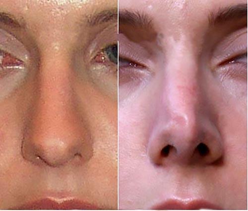 Неудачная ринопластика, ассиметрия носа