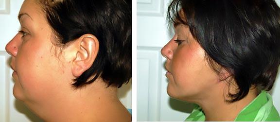 до и после нитевой подтяжки шеи
