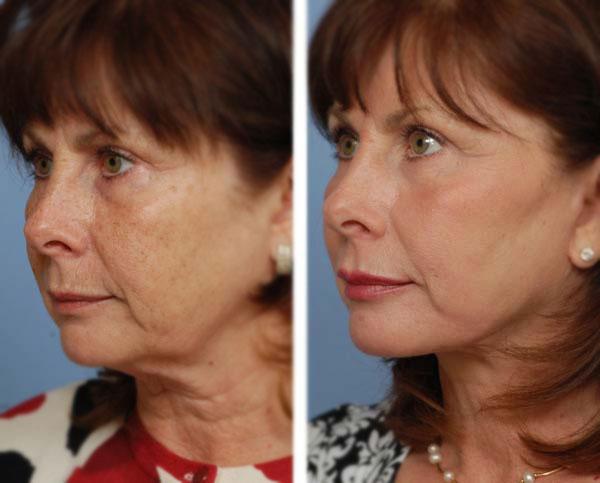 До и после ультразвуковой подтяжки лица
