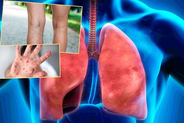 Болезни легких, инфекционные болезни, варикоз
