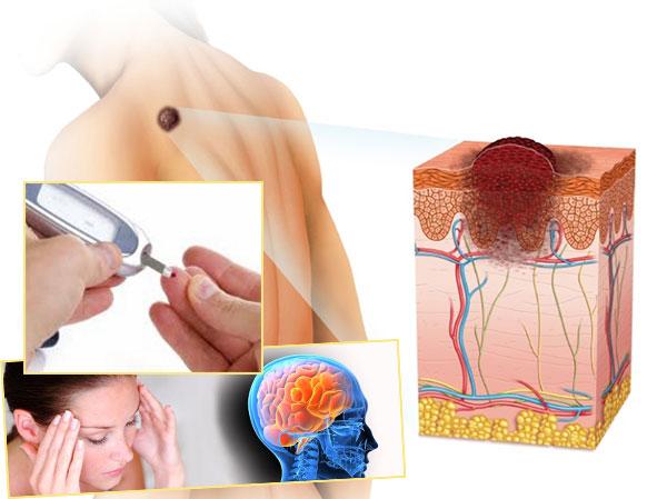 Неврологические заболевания, опухоли в организме, сахарный диабет