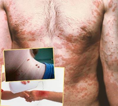 Острые кожные болезни, родинки, открытые раны