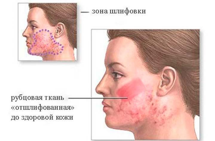 Действие дермабразии