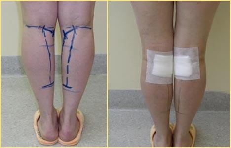 Круропластика линии и повязки