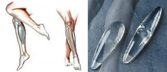 Импланты для голени