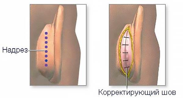 Схема надреза и корректирующего шва при отопластике