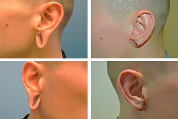 До и после реконструктивной пластики ушей