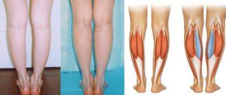 Мышцы голени и круропластика до и после