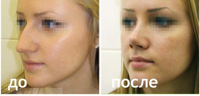 Классическая коррекция носа до и после