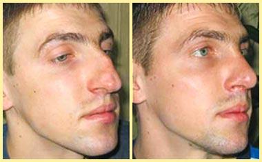 Удаление горбинки носа - до и после