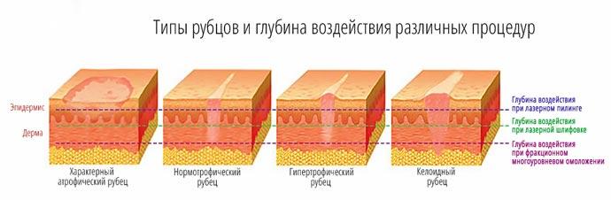 Типы рубцов и глуина воздействия различных процедур