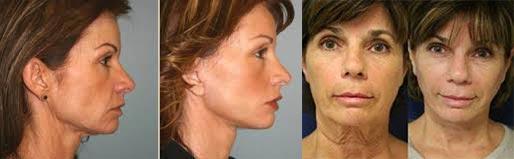 Фото до и после подтяжки шеи