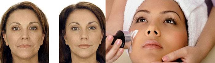 Подтяжка лица ультразвуком до и после