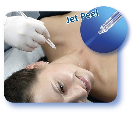 Прибор Jet Peel в работе