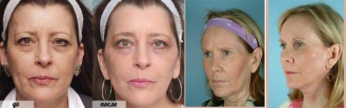 Результаты эндоскопической подтяжки лица до и после