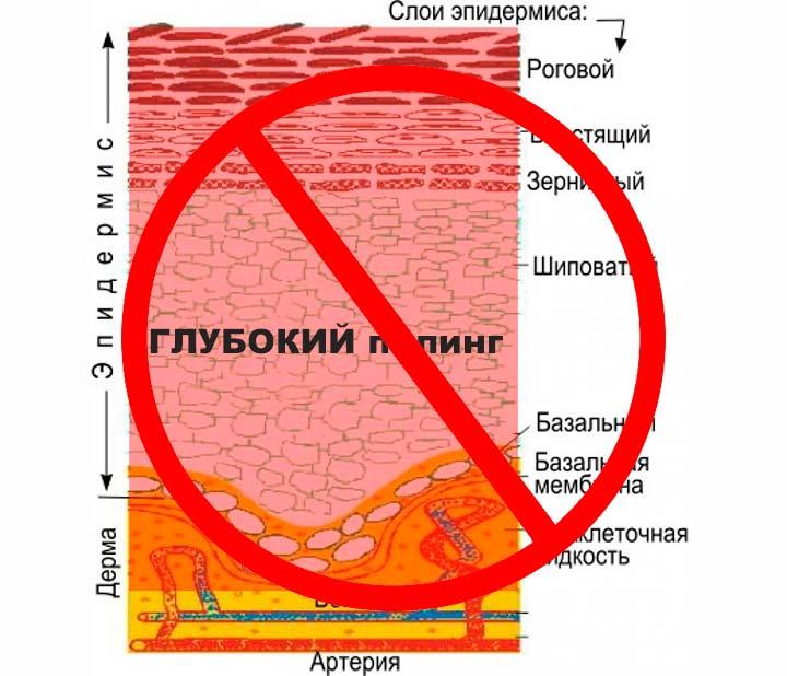 Трихлоруксусная кислота не предназначена для глубокого пилинга