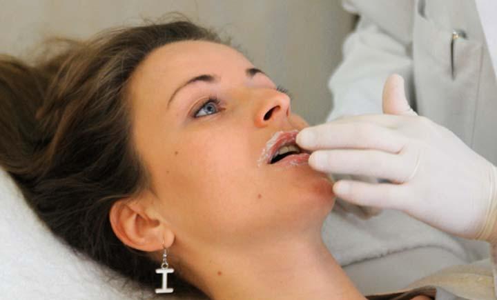 Анестезия губ