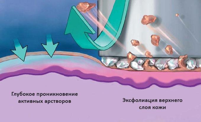 Схема воздействия гидромеханопилинга: эксфоляция кожи верхнего слоя