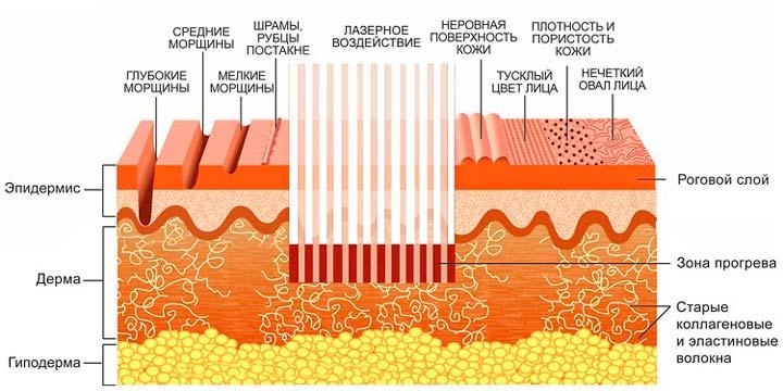 Действие лазера на кожу