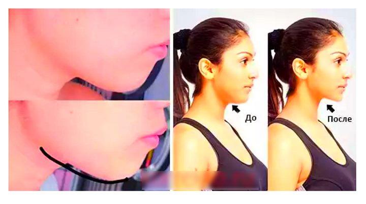 Фото до и после ношения бандажа для лица