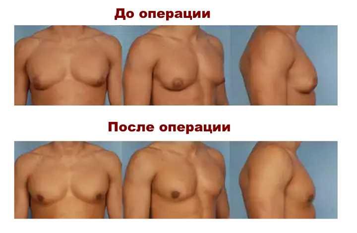 Изменения после операции от ипомастии