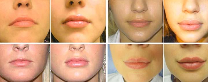 Результат увеличения губ