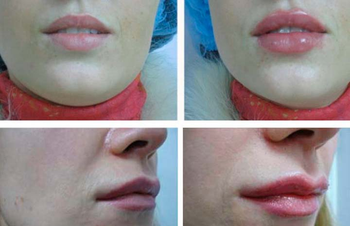 Результат липофилинга губ