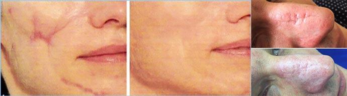 Результаты лезерной шлифовки - до и после