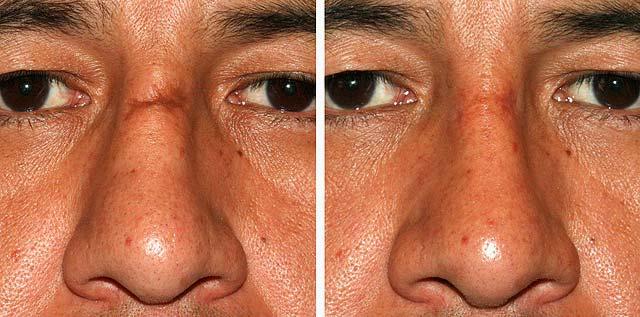 Эффективность дермабразии рубцов на коже
