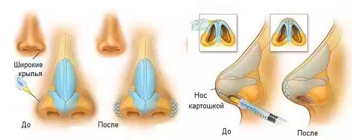 Введение филлера в полость носа