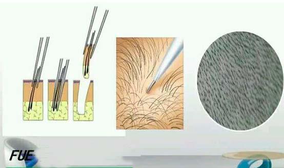 Технология пересадки волос FUE